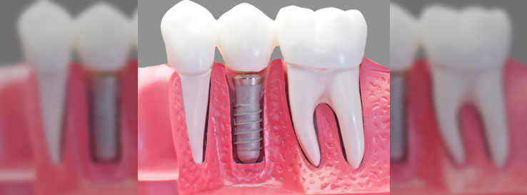 blog-dental_implants